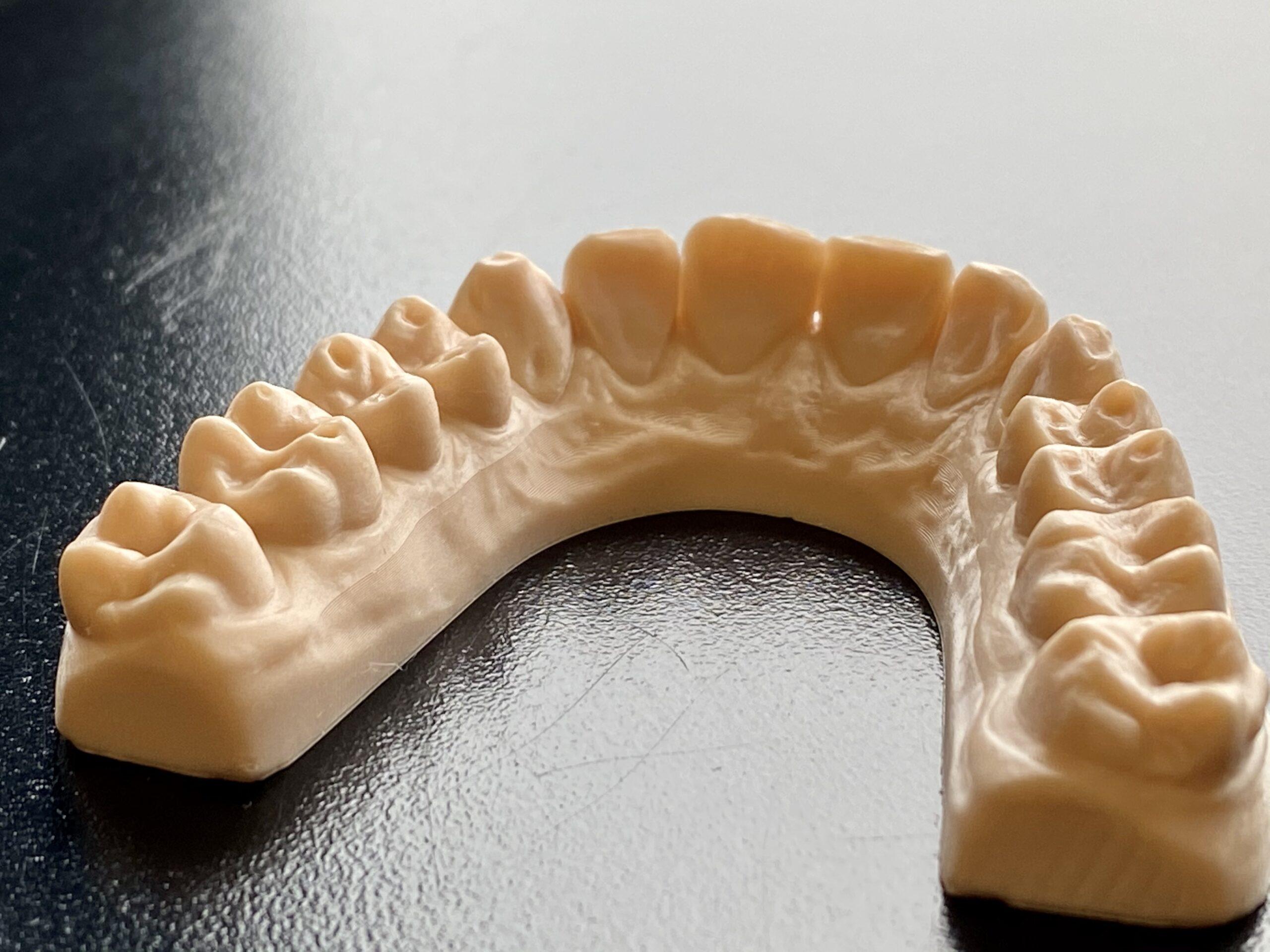 modello dentale stampato img
